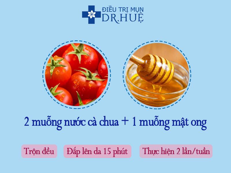 3 loại mặt nạ kiềm dầu nhờn cho da trong mùa nắng nóng - Điều trị mụn Dr Huệ - Hình 2