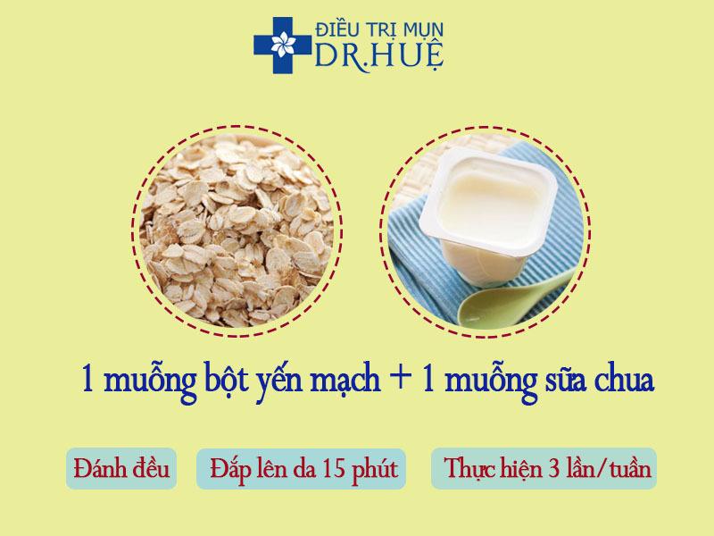 3 loại mặt nạ kiềm dầu nhờn cho da trong mùa nắng nóng - Điều trị mụn Dr Huệ - Hình 4