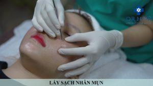 Bác sĩ chuyên khoa hướng dẫn cách chăm sóc da sau lăn kim - Điều trị mụn Dr Huệ - Hình 3