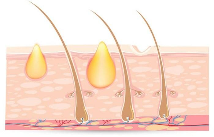 Bạn biết điều trị mụn chìm dưới da như thế nào chưa? - Điều trị mụn Dr Huệ - Hình 3