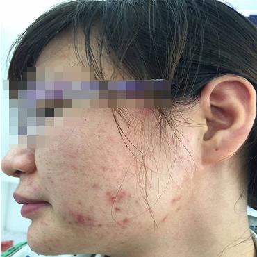 Bạn NTTT - 21 tuổi - Điều trị mụn Dr Huệ - Hình 1