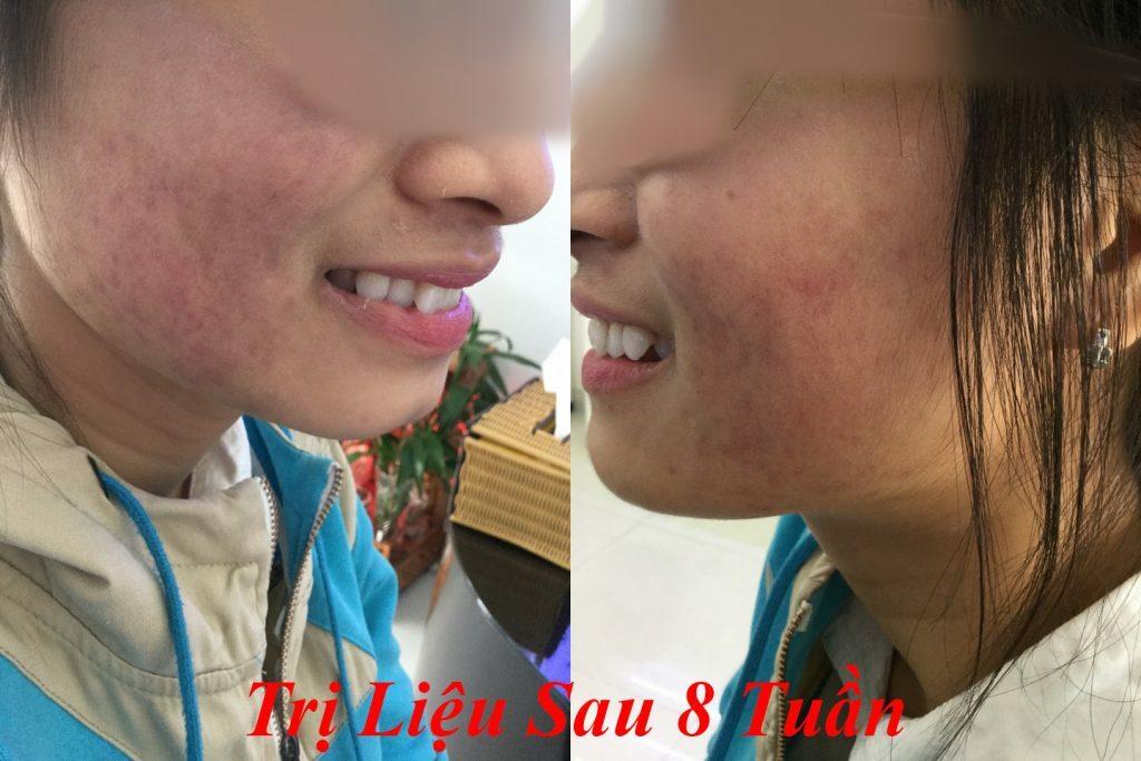 Cảm nhận của bạn Tuyền - 21 tuổi về điều trị mụn Dr Huệ - Điều trị mụn Dr Huệ - Hình 2