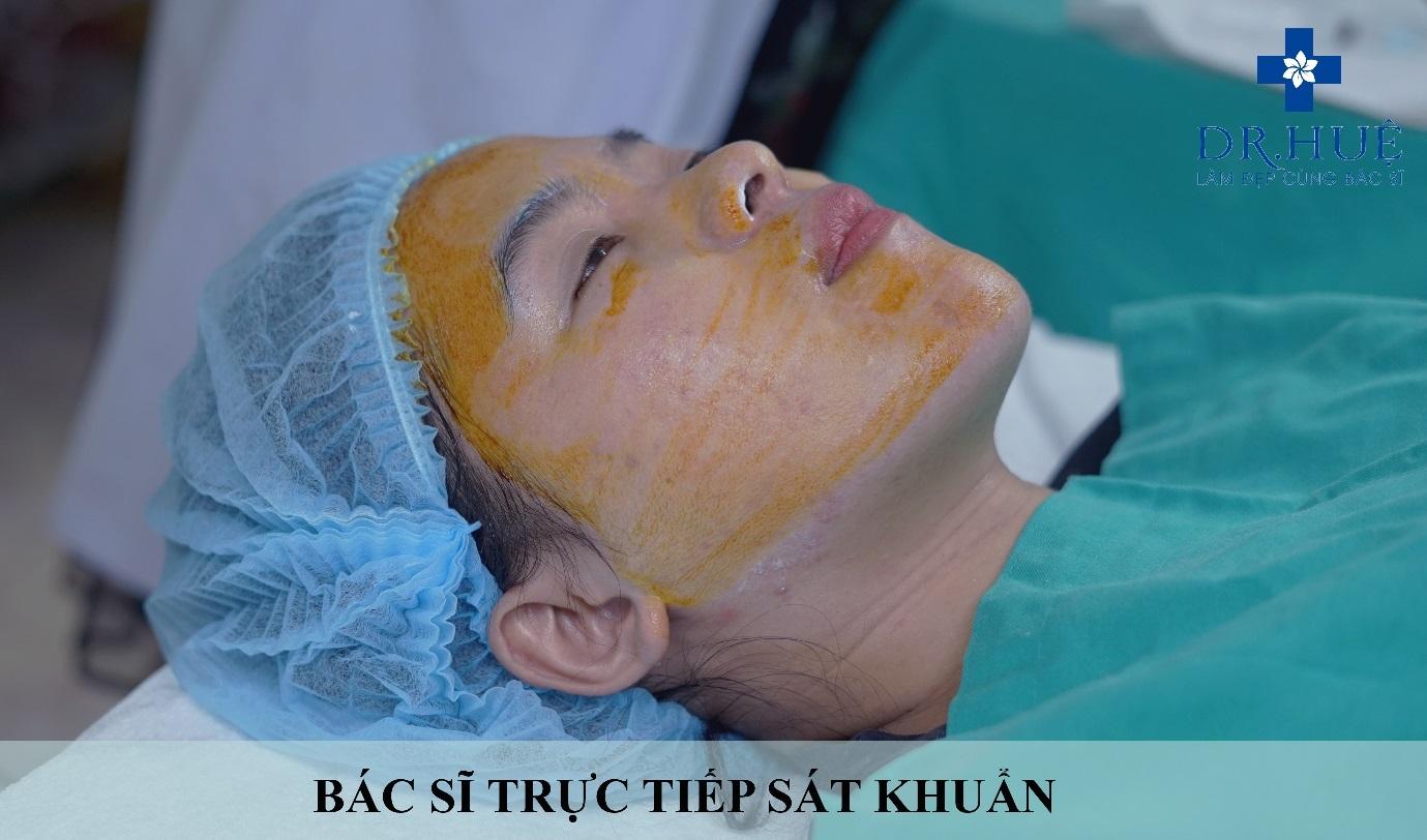 Bất ngờ với phương pháp điều trị sẹo lõm trên da mặt - Hình 3