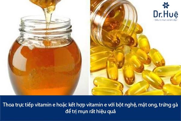 Bôi Vitamin E Có Trị Mụn Được Không? - Hình 4