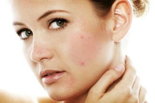 Các loại kem dưỡng da sau khi điều trị mụn - Điều trị mụn Dr Huệ - Hình 3
