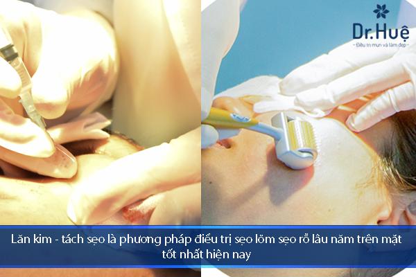 Cách Điều Trị Sẹo Lõm Sẹo Rỗ Lâu Năm Trên Mặt Tốt Nhất Tại Dr.Huệ - Hình 1
