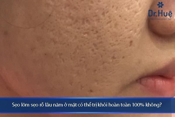 Cách Điều Trị Sẹo Lõm Sẹo Rỗ Lâu Năm Trên Mặt Tốt Nhất Tại Dr.Huệ - Hình 3