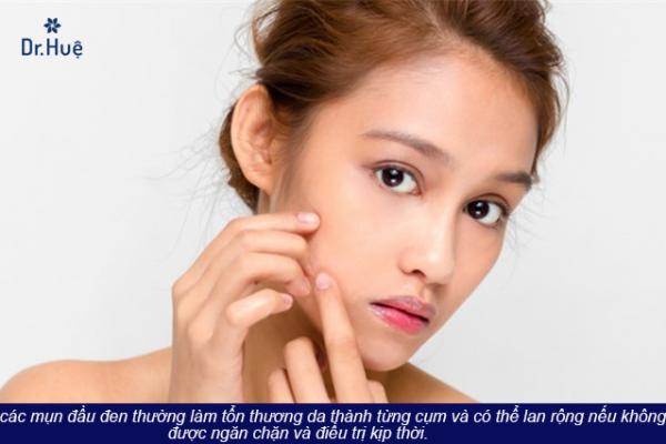 Cách làm mặt nạ trị mụn đầu đen và se khít lỗ chân lông - Điều trị mụn Dr Huệ - Hình 1