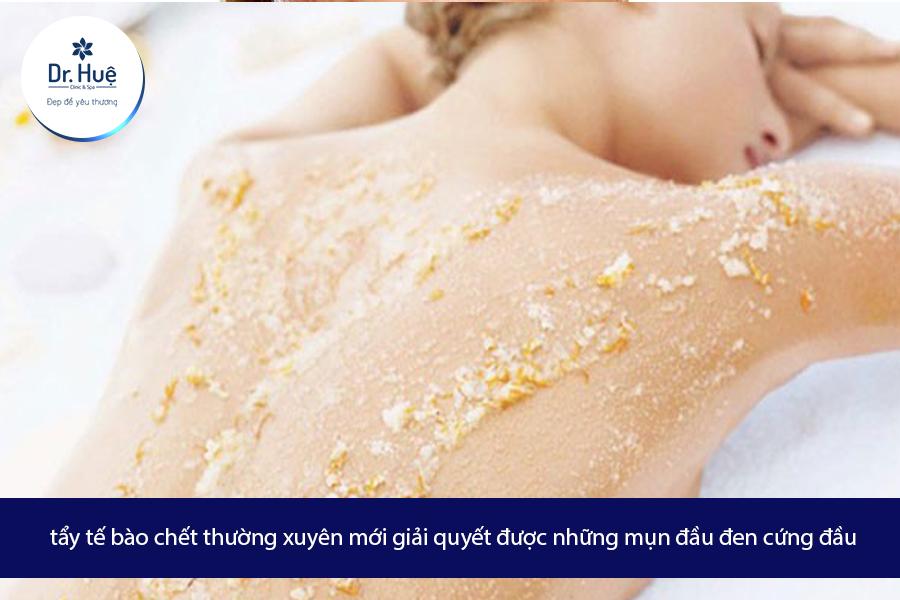 Cách trị mụn ở ngực hiệu quả an toàn - Điều trị mụn Dr Huệ - Hình 2