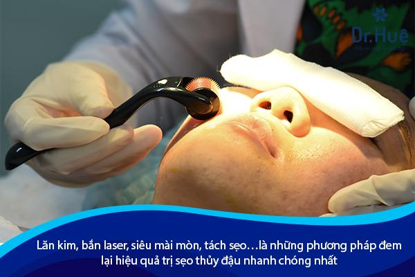Cách Trị Sẹo Sau Khi Bị Thủy Đậu Tốt Nhất Tại Dr. Huệ - Hình 3