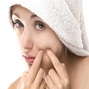 Cần chú ý những gì khi bạn điều trị sẹo rỗ tại trung tâm? - Điều trị mụn Dr Huệ - Hình 1