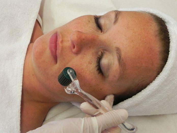 Chăm sóc da mặt sau lăn kim như thế nào là đúng? - Điều trị mụn Dr Huệ - Hình 1