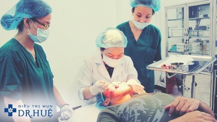 Chi phí điều trị sẹo lõm bằng kim lăn thấp nhưng hiệu quả cao - Điều trị mụn Dr Huệ - Hình 4