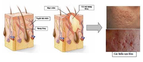 Chọn nơi điều trị sẹo rỗ uy tín và hiệu quả - Hình 3