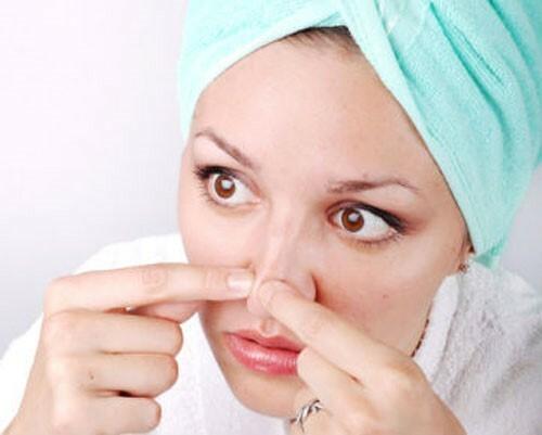Có nên nặn mụn đầu đen ở má và mũi không? - Điều trị mụn Dr Huệ - Hình 2