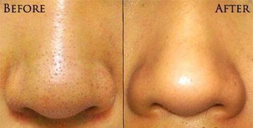 Có nên nặn mụn đầu đen ở má và mũi không? - Điều trị mụn Dr Huệ - Hình 4