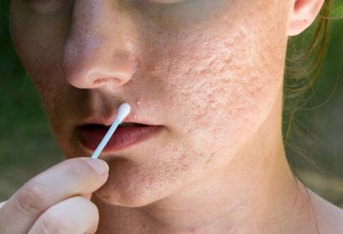 Công dụng của laser trong điều trị sẹo rỗ - Điều trị mụn Dr Huệ - Hình 2