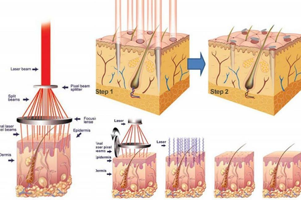 Công dụng của laser trong điều trị sẹo rỗ - Điều trị mụn Dr Huệ - Hình 5