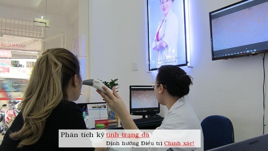 Công nghệ điều trị mụn bọc hiệu quả tại Dr. Huệ