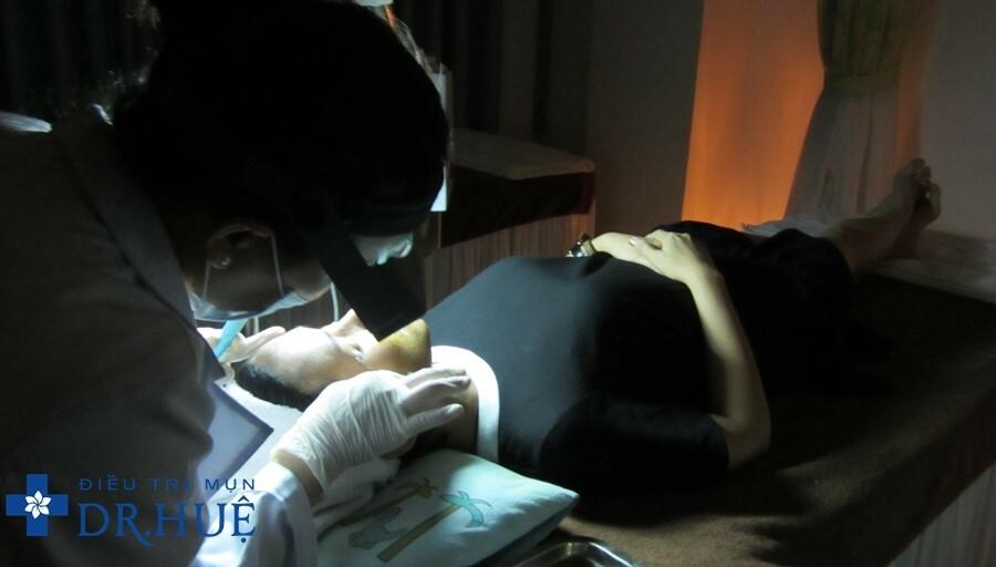 Công nghệ điều trị mụn bọc hiệu quả tại Dr. Huệ - Điều trị mụn Dr Huệ - Hình 6