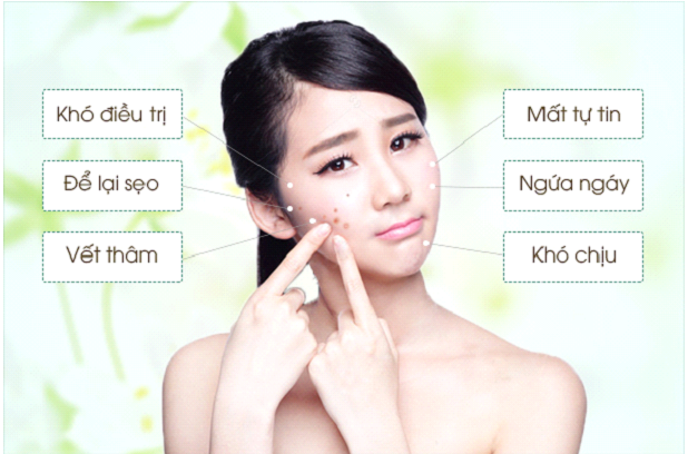 Điểm danh các loại mụn xuất hiện trên da bạn hiện nay - Hình 1