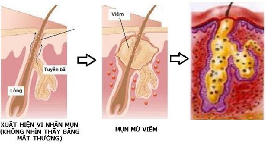 Điều cần biết khi điều trị mụn bọc có mủ - Điều trị mụn Dr Huệ - Hình 5