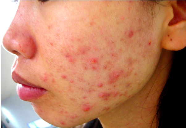 Điều trị mụn bọc dưới da với phương pháp đơn giản nhất - Điều trị mụn Dr Huệ - Hình 2