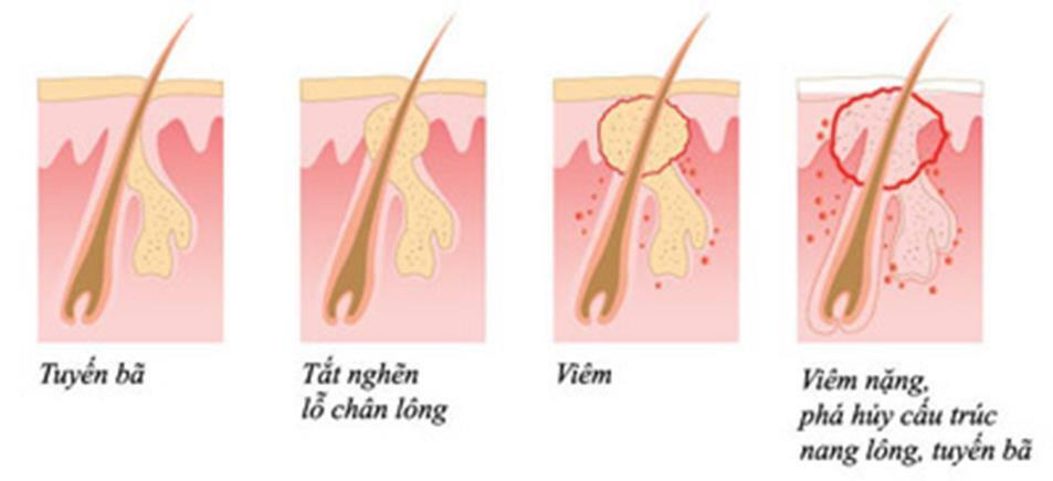 Điều trị mụn chìm dưới da như thế nào - Điều trị mụn Dr Huệ - Hình 4
