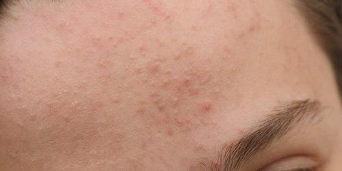 Điều trị mụn chìm dưới da như thế nào - Điều trị mụn Dr Huệ - Hình 2