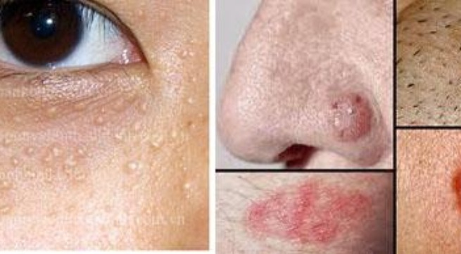 Điều trị mụn cóc trên mặt sao cho hiệu quả nhất? - Hình 2