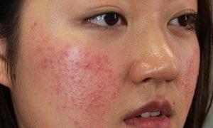 Điều trị mụn dưới da bằng các nguyên liệu tự nhiên - Điều trị mụn Dr Huệ - Hình 2