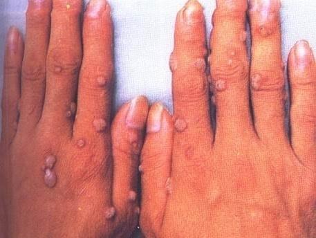 Điều trị mụn hạt cơm có khó không ? - Hình 2