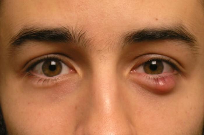 Điều trị mụn lẹo ở mắt như thế nào? - Điều trị mụn Dr Huệ - Hình 3