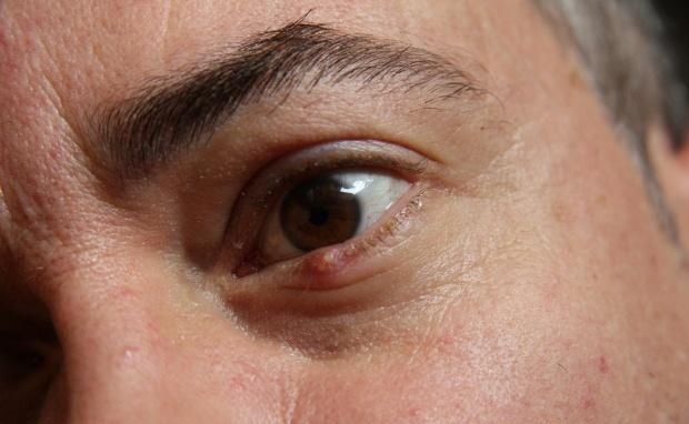 Điều trị mụn lẹo ở mắt như thế nào? - Điều trị mụn Dr Huệ - Hình 2