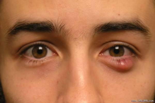 Điều trị mụn lẹo ở mắt sao cho hiệu quả - Điều trị mụn Dr Huệ - Hình 2