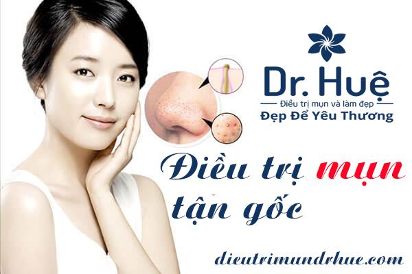 Điều trị mụn tận gốc tại điều trị mụn Dr.Huệ