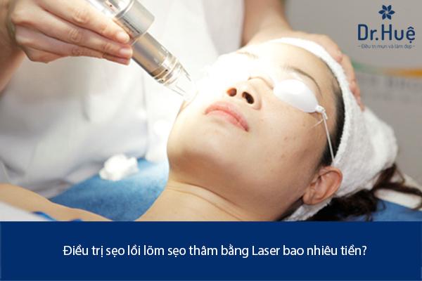 Điều Trị Sẹo Lồi Lõm Sẹo Thâm Bằng Laser Bao Nhiêu Tiền Ở Đâu TPHCM - Hình 3