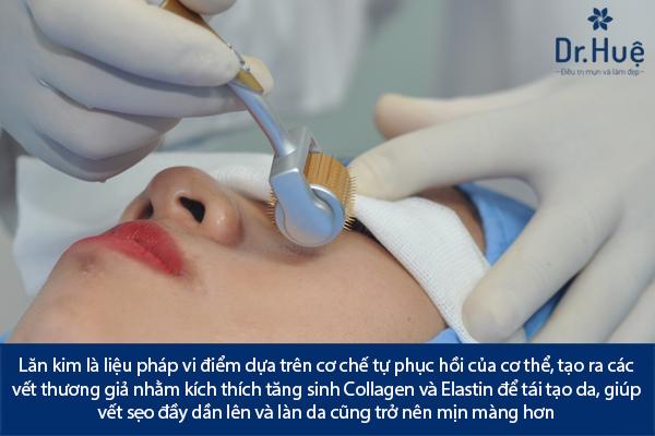 Điều Trị Sẹo Lồi Lõm Sẹo Thâm Bằng Laser Bao Nhiêu Tiền Ở Đâu TPHCM - Hình 4