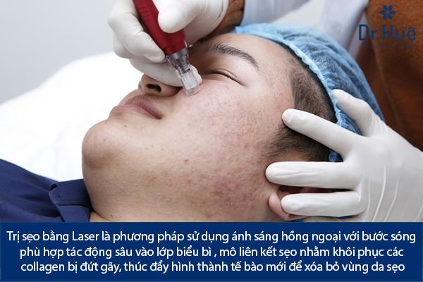 Điều Trị Sẹo Lồi Lõm Sẹo Thâm Bằng Laser Bao Nhiêu Tiền Ở Đâu TPHCM - Hình 1