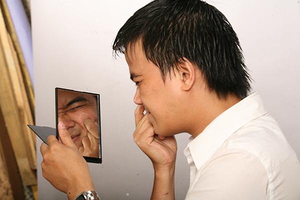 Điều trị sẹo lõm cho nam giới tại đâu? - Điều trị mụn Dr Huệ - Hình 3