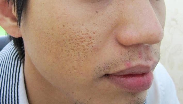 Điều trị sẹo lõm cho nam giới tại đâu?