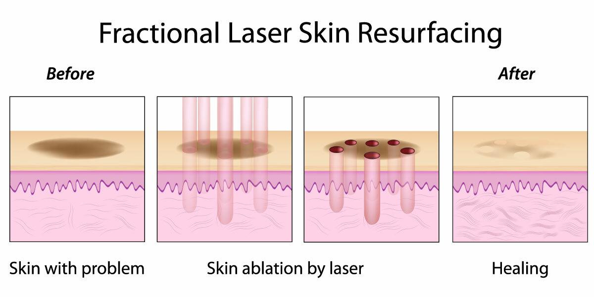 Điều trị sẹo rỗ bằng công nghệ laser là phương pháp như thế nào? - Điều trị mụn Dr Huệ - Hình 3