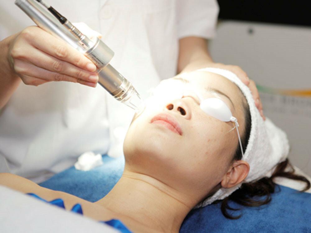 Điều trị sẹo rỗ bằng laser có gì hot? - Điều trị mụn Dr Huệ - Hình 2