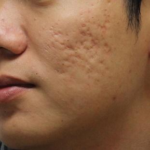 Điều trị sẹo rỗ bằng laser có thực sự tốt?