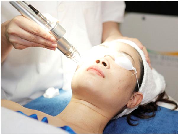 Điều trị sẹo rỗ bằng laser - liệu có an toàn và hiệu quả không? - Hình 2