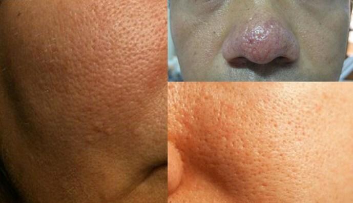 Điều trị sẹo rỗ mụn thâm lỗ chân lông to tại đâu hiệu quả và an toàn - Hình 2