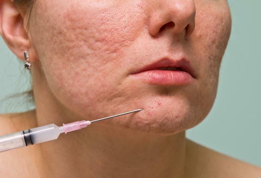Điều trị sẹo rỗ sau mụn có dễ không?