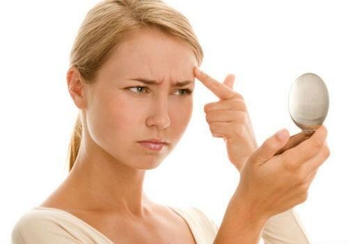 Điều trị sẹo rỗ sau mụn - không còn là cơn ác mộng - Điều trị mụn Dr Huệ - Hình 1