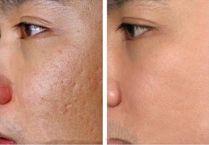 Giải pháp hay cho người gặp rắc rối về sẹo lõm - Điều trị mụn Dr Huệ - Hình 5