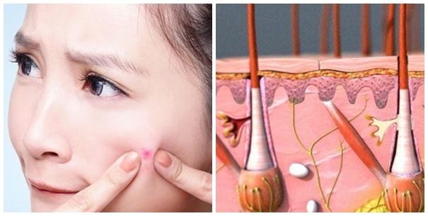 Giải pháp hay cho người gặp rắc rối về sẹo lõm - Điều trị mụn Dr Huệ - Hình 1